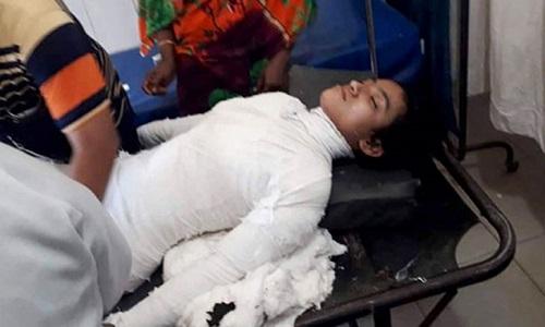 না ফেরার দেশে নুসরাত,ময়নাতদন্ত শেষে মৃতদেহ নেয়া হবে সোনাগাজীতে
